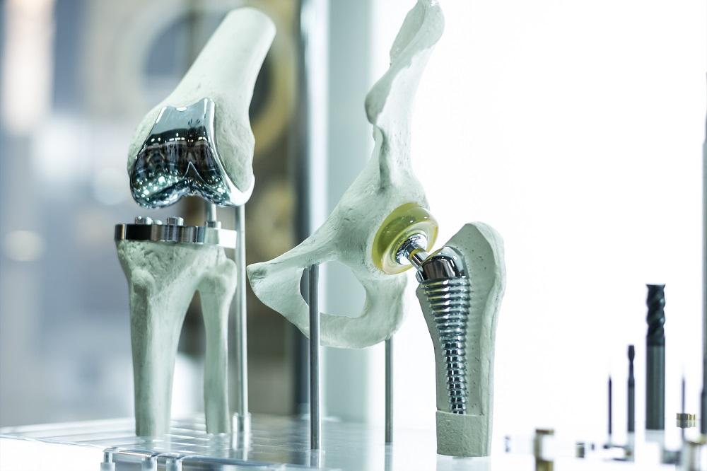 Illustration d'une prothèse genou et hanche